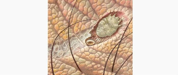 внутриклеточные паразиты название